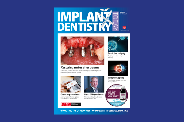 FMC_website-Implant Dentistry Today